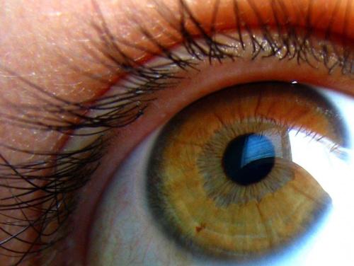 na oku też mam pieprzyka :D